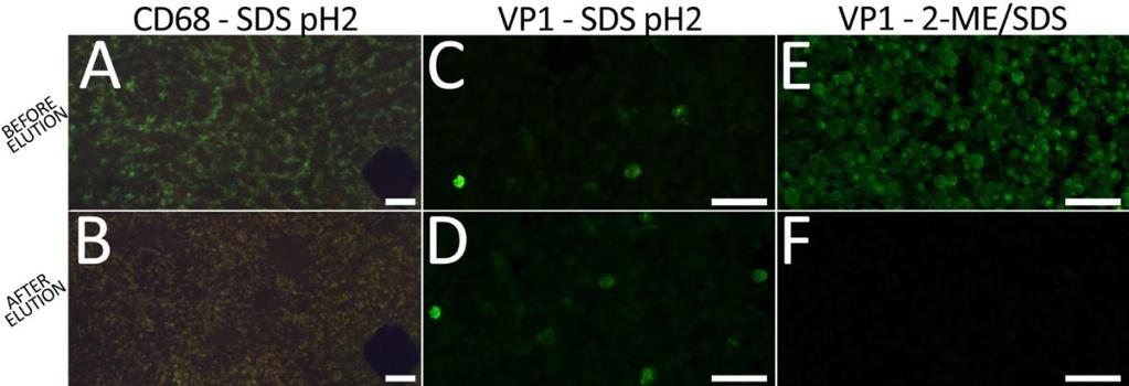 Figure 9. Elution of bound antibodies with SDS ph2 and 2-ME/SDS solutions. SDS ph2 solution was an effective elution solution for some antibodies such as CD68.