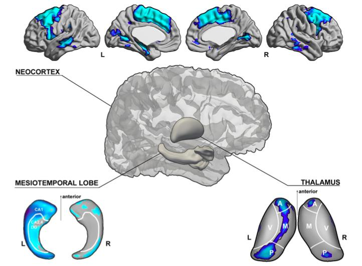 SCHEMATIC ILLUSTRATION OF GRAY MATTER STRUCTURAL ANOMALIES IN TEMPORAL