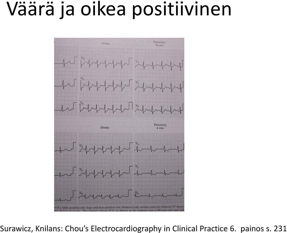Electrocardiography in