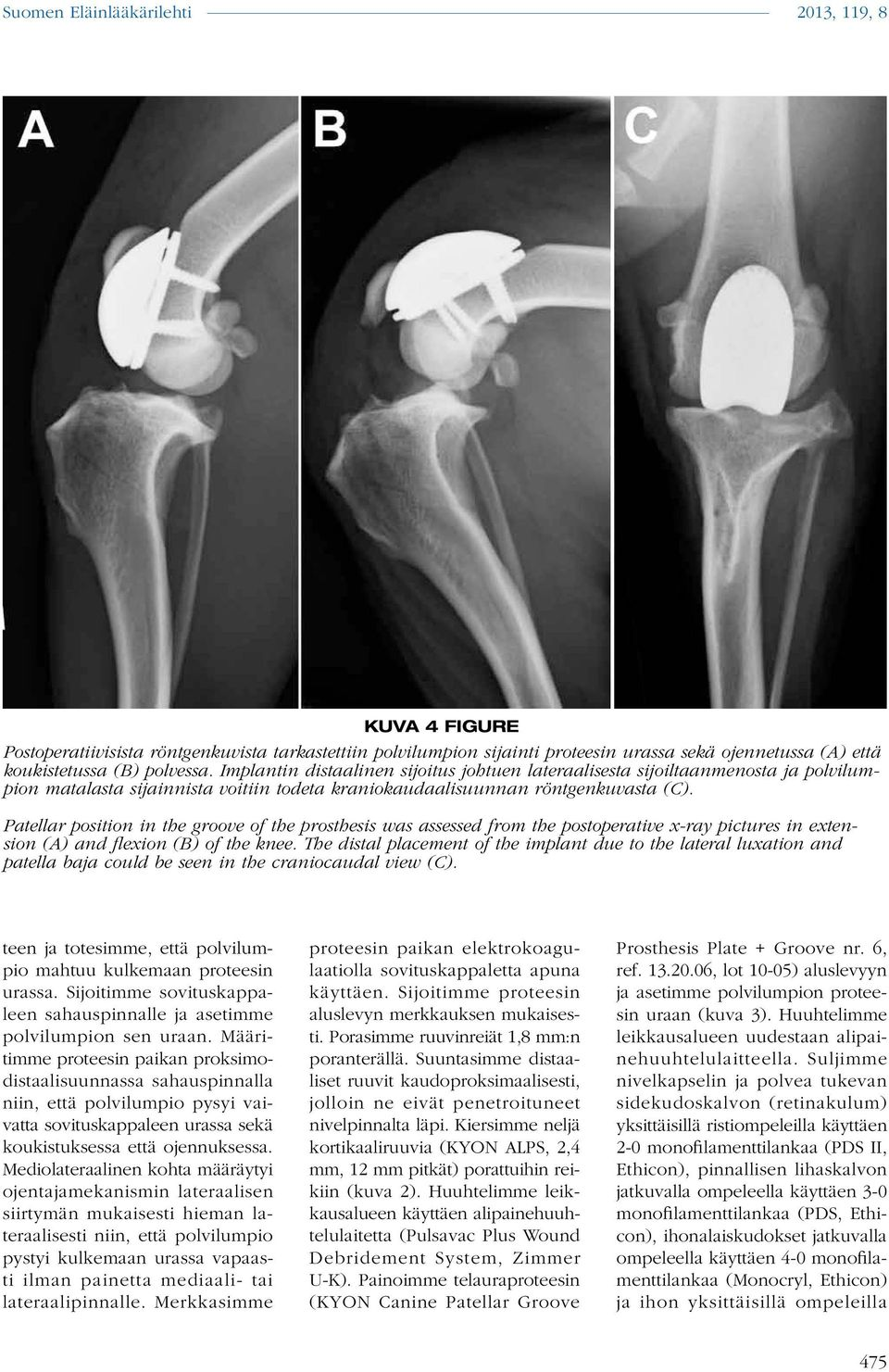 Patellar position in the groove of the prosthesis was assessed from the postoperative x-ray pictures in extension (A) and flexion (B) of the knee.