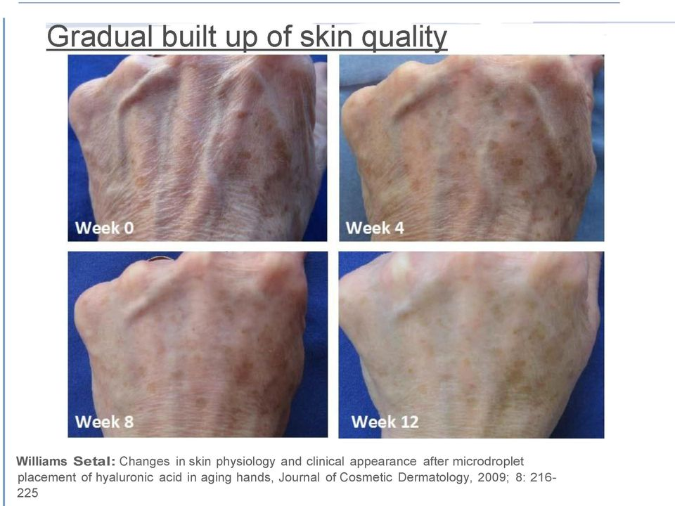 placement of hyaluronic acid in aging hands,