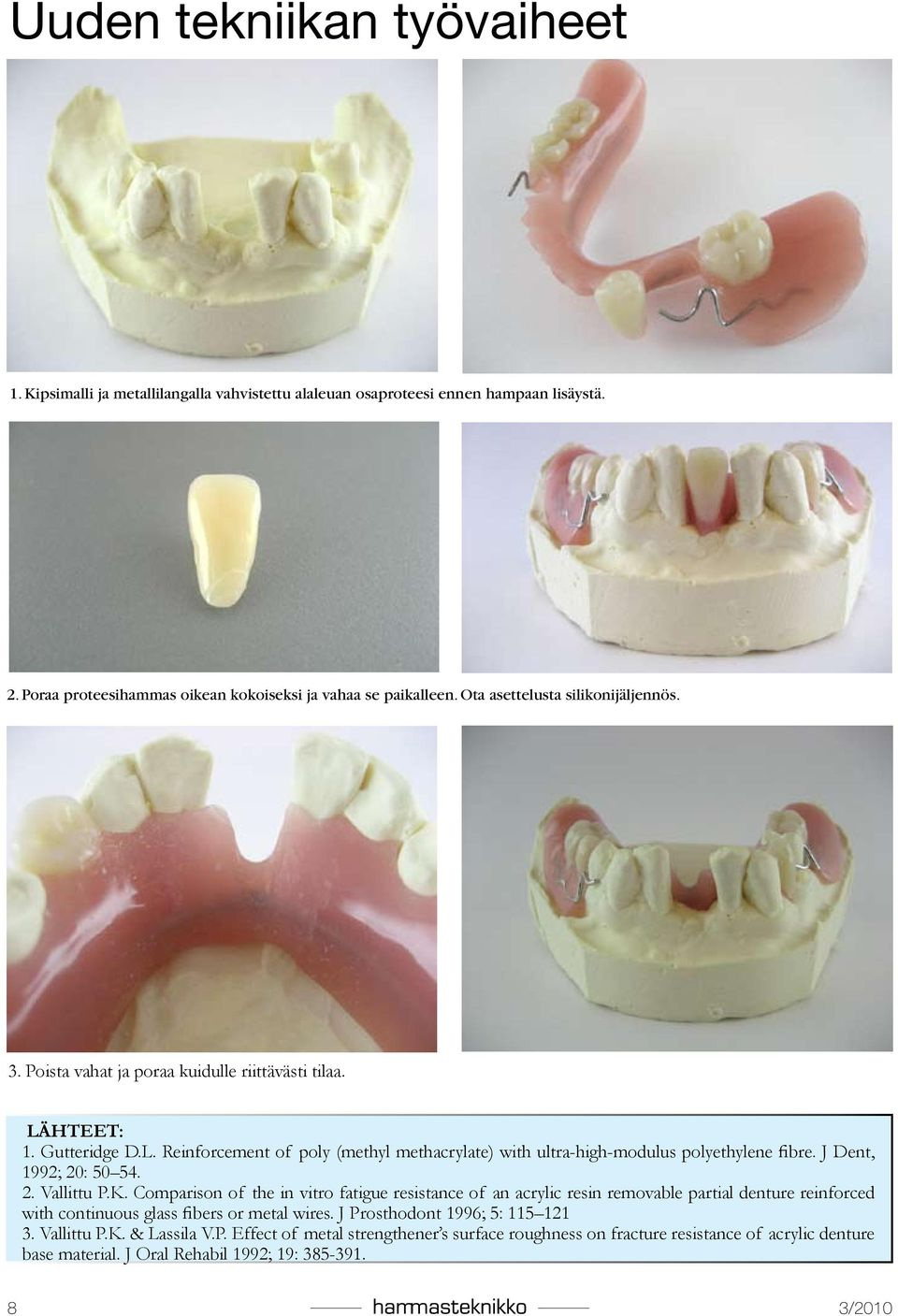 J Dent, 1992; 20: 50 54. 2. Vallittu P.K. Comparison of the in vitro fatigue resistance of an acrylic resin removable partial denture reinforced with continuous glass fibers or metal wires.