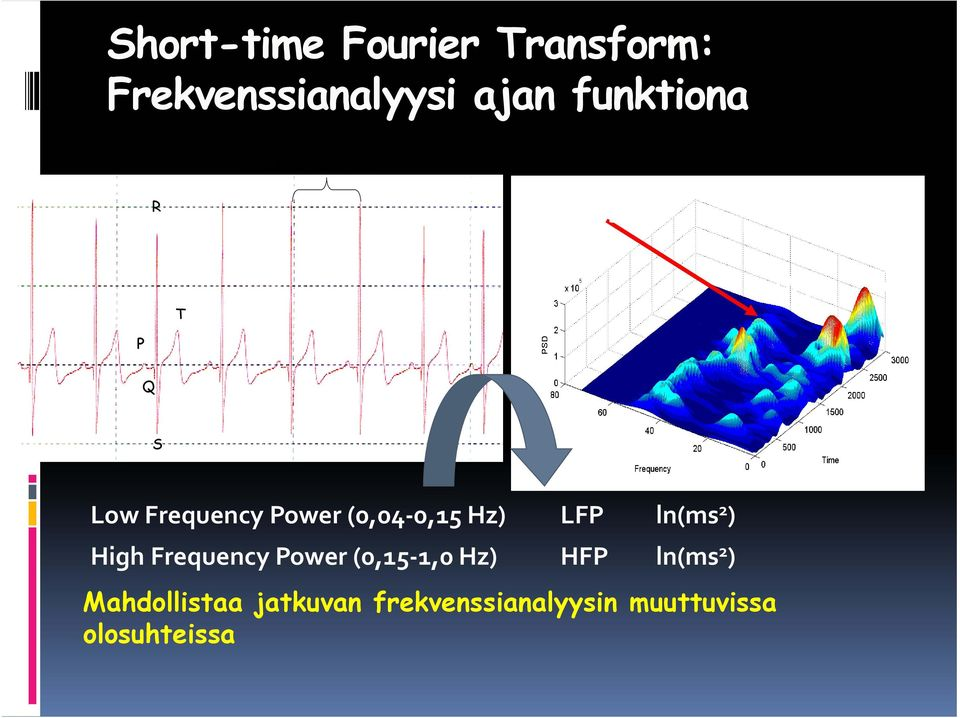 0,15 Hz) LFP ln(ms 2 ) High Frequency Power (0,15 1,0 Hz) HFP