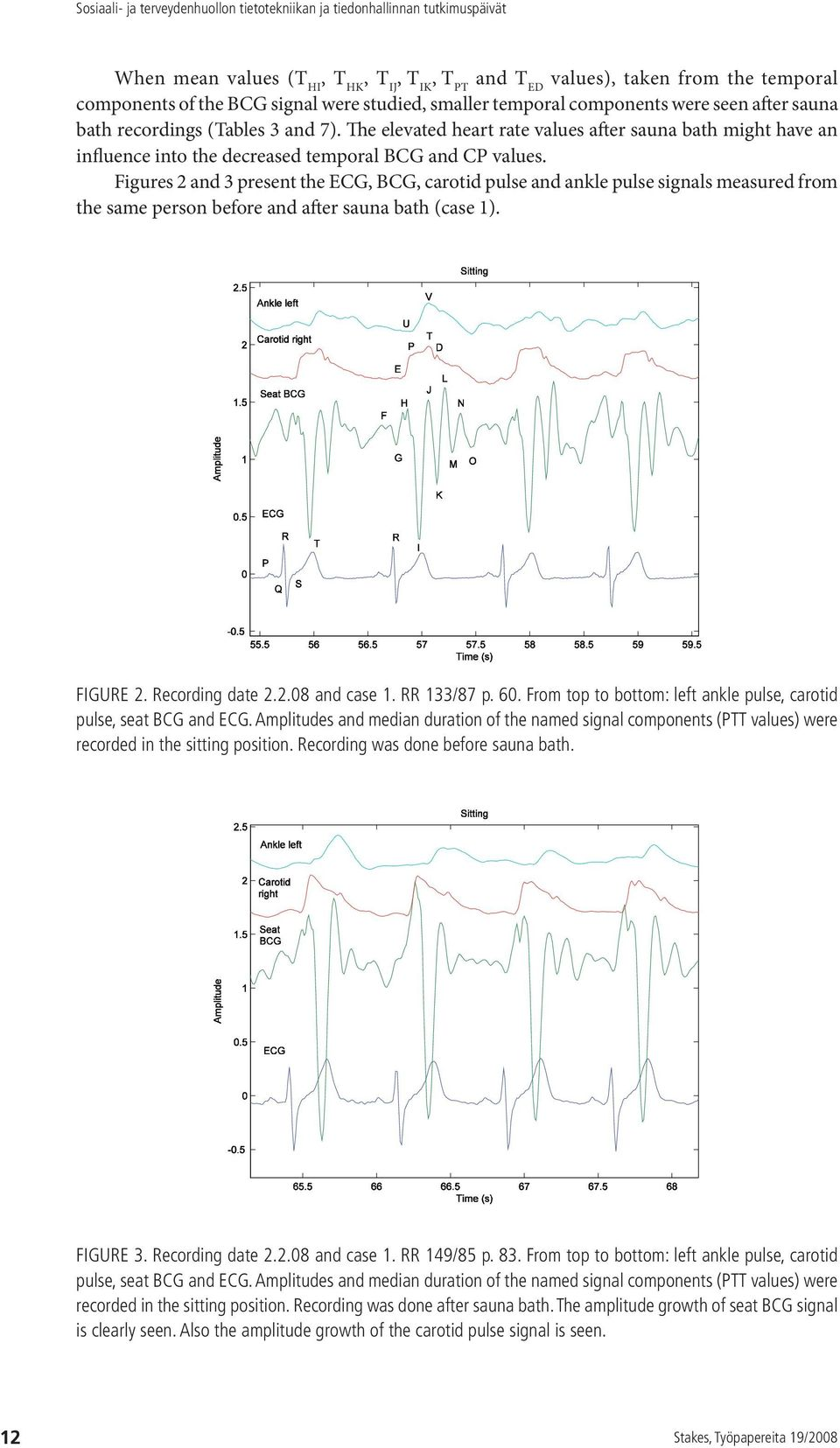 Figures 2 and 3 present the ECG, BCG, carotid pulse and ankle pulse signals measured from the same person before and after sauna bath (case 1). Figure 2. Recording date 2.2.08 and case 1. RR 133/87 p.