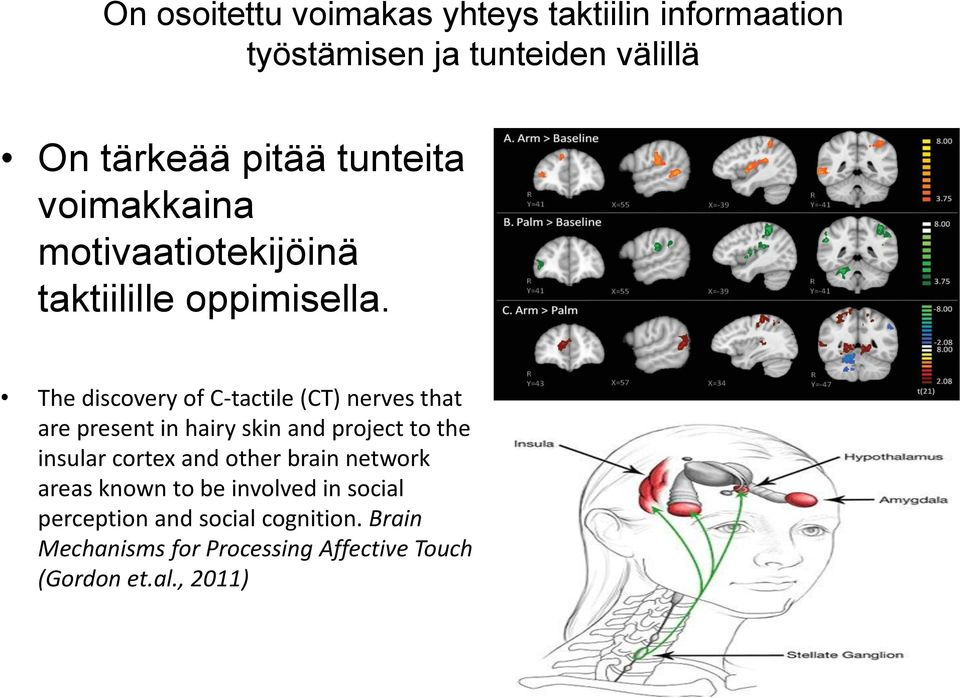 The discovery of C-tactile (CT) nerves that are present in hairy skin and project to the insular cortex and