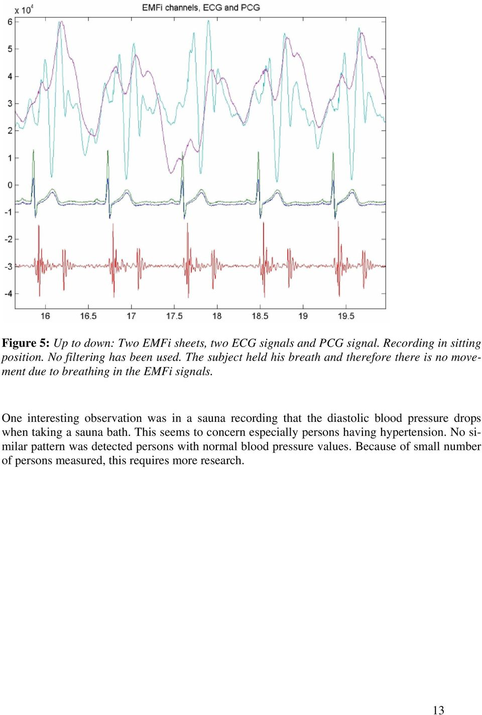 One interesting observation was in a sauna recording that the diastolic blood pressure drops when taking a sauna bath.