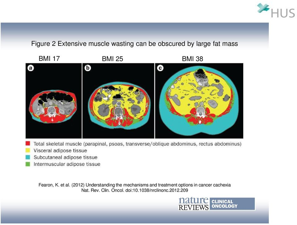 (2012) Understanding the mechanisms and treatment options