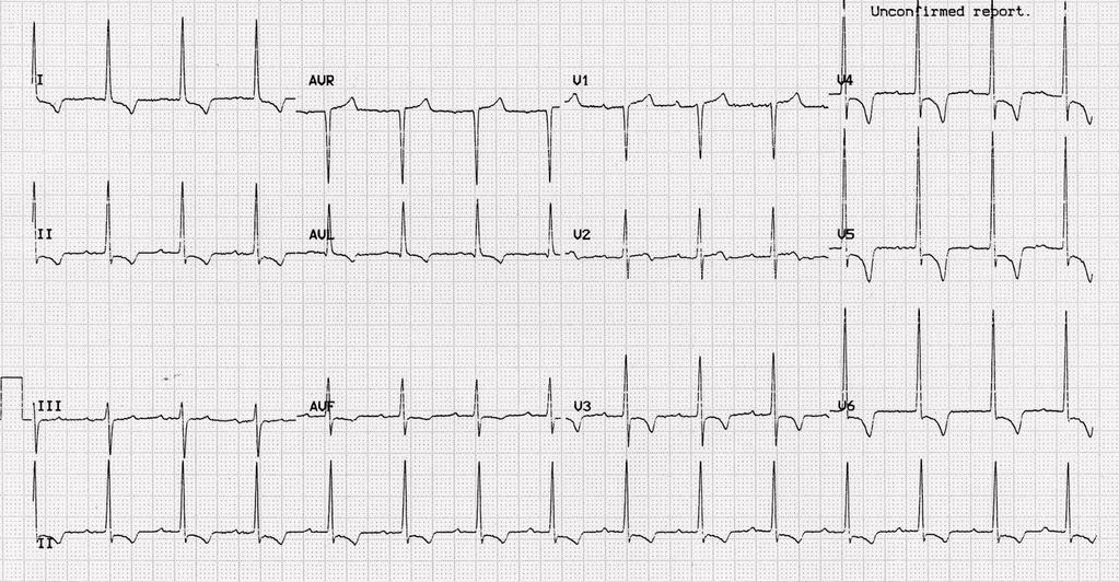 Case 1: chest pain during exercise, 19 yo male Exercise test: